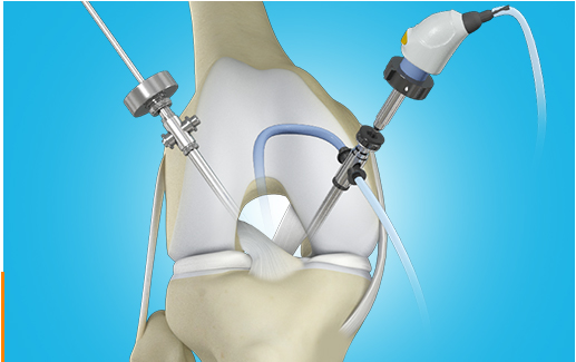 Arthroscopic Techniques